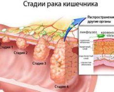 Kak-proverit-kishechnik-na-onkologiju