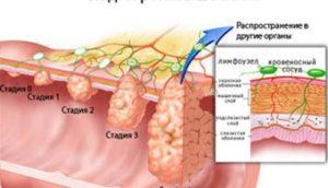 Пневматоз петель кишечника — VospalenieKishechnika