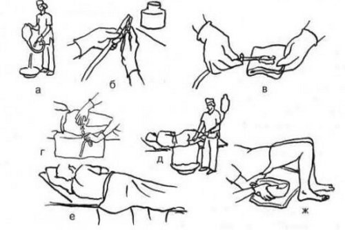 Klizma-v-domashnih-uslovijah-instrukcija