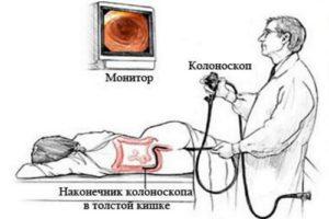 Kolonoskopija-kishechnika