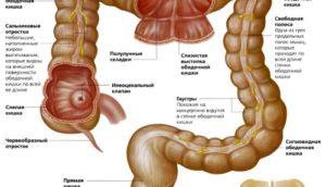 Как выявить рак кишечника на ранней стадии