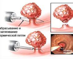 Заболевания прямой кишки: симптомы и признаки болезни, лечение