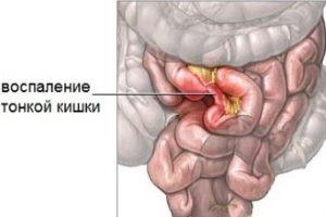 Vospalenie-tonkoj-kishki