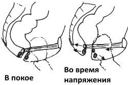 Anorektalnaja-oblast-v-pokoe-i-pri-naprjazhenii