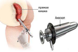 Anoskopija