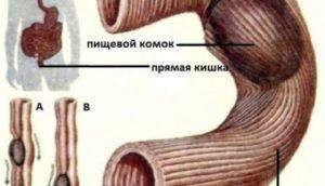 Дегтеобразный стул фото