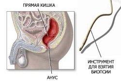 Instrument-dlja-vzjatija-biopsii