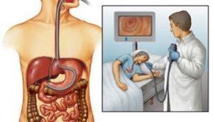 Как можно проверить кишечник - Лечение