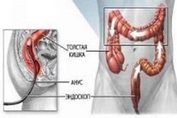 Jendoskopija-kishechnika