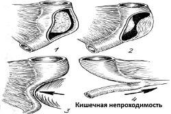 Kishechnaja-neprohodimost-vidy