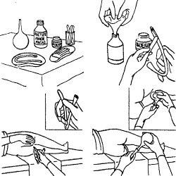 Как сделать клизму с помощью груши — Лечение артроза и артрита, лечение подагры
