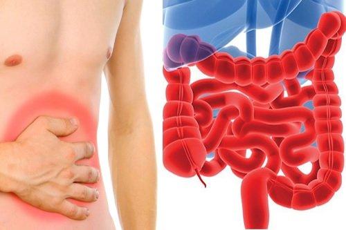 Воспаления кишечного тракта
