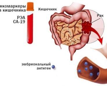 Onkomarkery-kishechnika