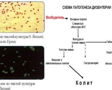 Patogenez-dizentirii