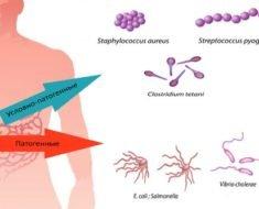 Patogennaja-i-uslovno-patogennaja-mikroflora