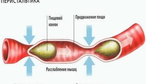 Перельстатика кишечника нарушена что делать
