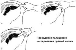 Provedenie-palcevogo-issledovanija-prjamoj-kishki