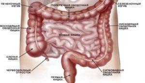 Признаки заболевания прямой кишки у женщин