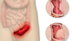 Болезни кишечника и их симптомы у женщин