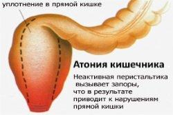 Atonija-kishechnika