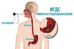 Fibrogastroduedonoskopija