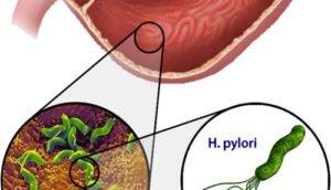 Грибок в кишечнике (кандидоз): симптомы и лечение инфекции