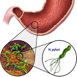 HelicobacterPylori-inficirovanie