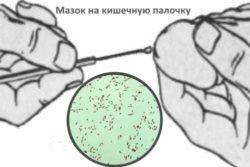 Mazok-na-kishechnuju-palochku