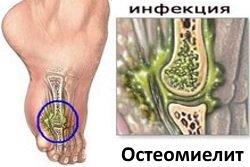 Osteomielit