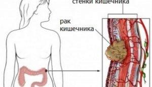 Онкомаркеры кишечника: выявить рак на первой стадии