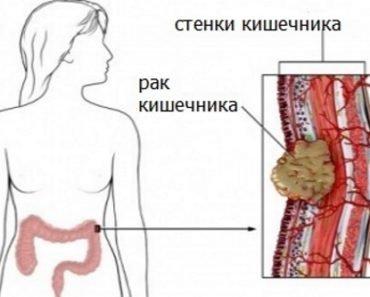 Rak-kishechnika