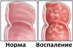 Vospalenie-slizistoj