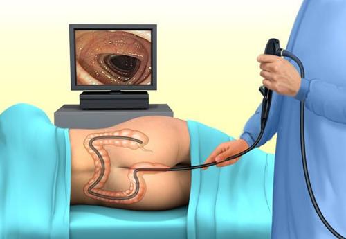 Диагностика заболеваний с кровотечением из кишечника