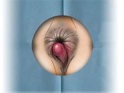 Геморрой - причина выделения крови из кишечника