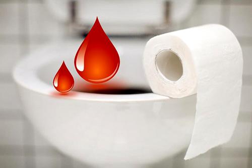Кровь при дефекации