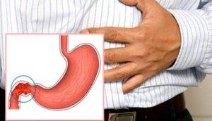 Урчание в кишечнике: причины и доступные варианты лечения