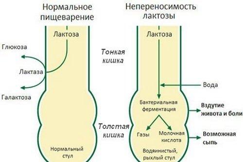 Neperenosimost-laktozy