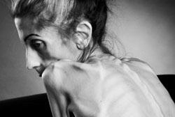 Невротическая анорексия
