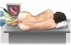 Диагностика заболеваний кишечника
