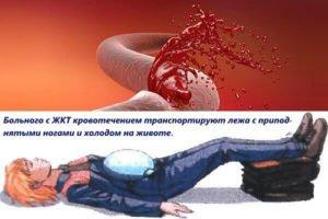 Первая помощь при кровотечении из ЖКТ