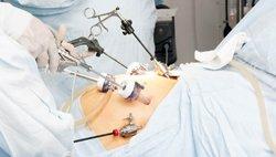 Хирургическое лечение рака кишечника