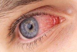 Поражение глаз при сигмоидите