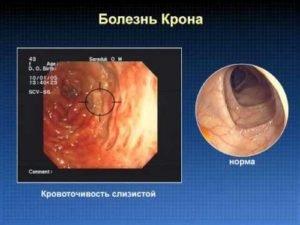 Как вылечить выделения из кишечника слизи thumbnail
