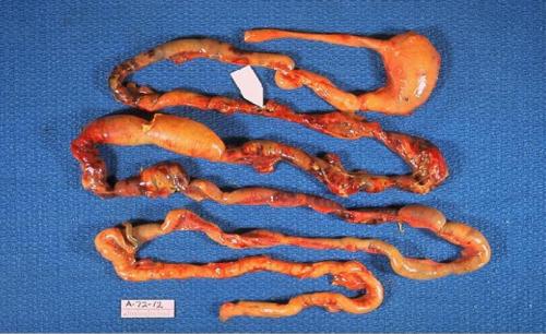Отмирание тканей