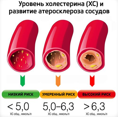 Уровень холестерина