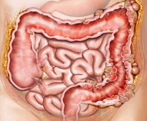 Пневматоз кишечника
