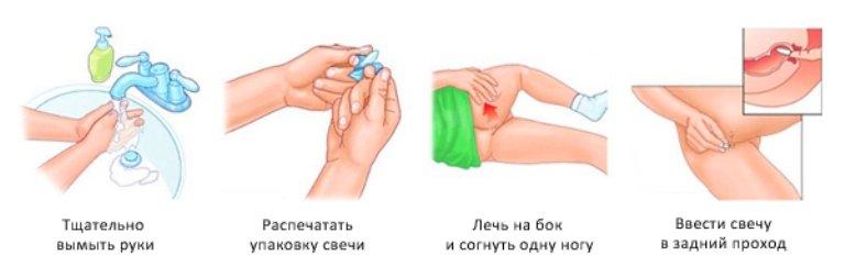 Ввод суппозитария