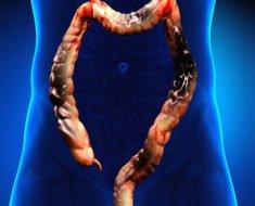 Гангрена кишечника