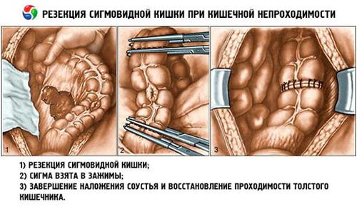 Резекция участка кишечника