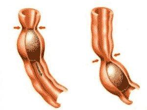 Нормальная моторика кишечника